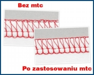 sMarTloCk BERNINA L-450 owerlok 4-nitkowy klasy PREMUIM z systemem MTC